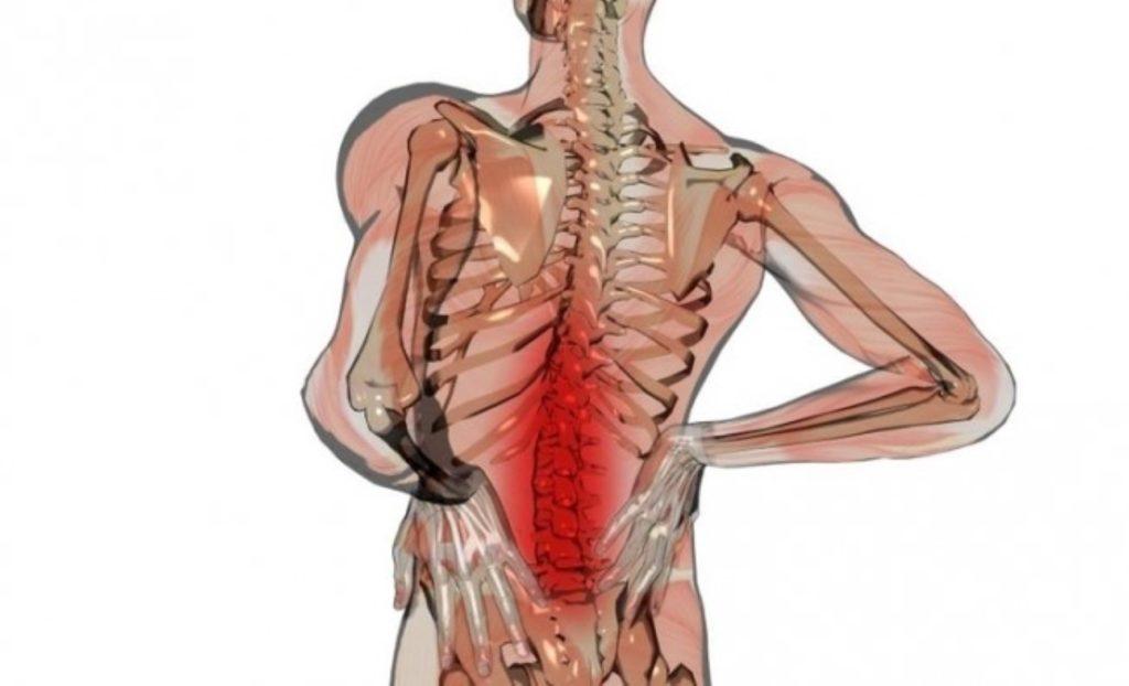 dolor-lumbar